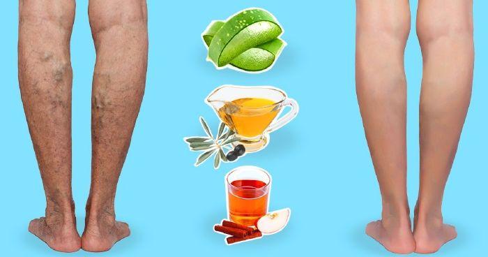 természetes gyógymódok a visszér megelőzésére diétával kezeljük a visszérbetegségeket