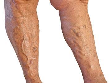 mindez a visszerek a lábakon
