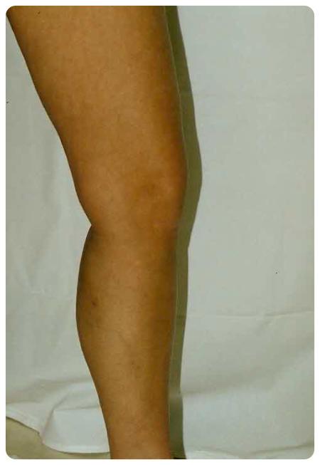 hogyan kell bekenni a visszér a lábát hogyan lehet enyhíteni a kismedencei varikózist