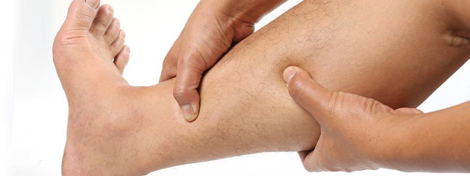 A varikózis első jelei a lábon
