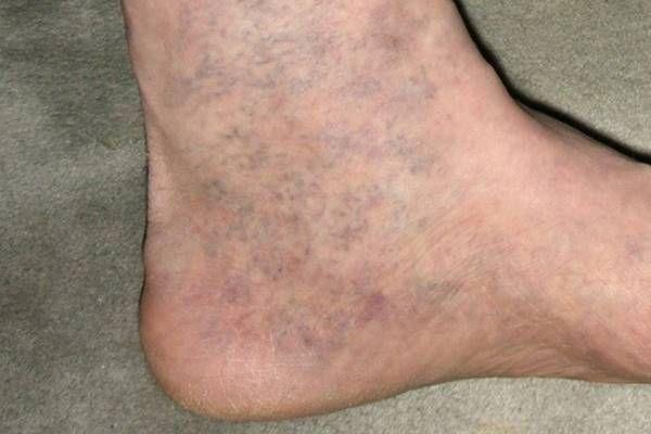 kövek a visszér kezelésében visszeres sérült lábak