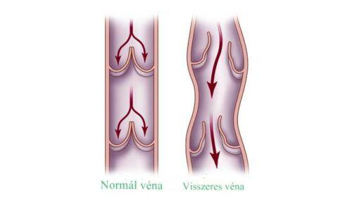 kövek a visszér kezelésében hogyan jön le a vérrög visszérrel