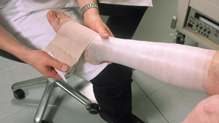 kenőcsök a láb ödéma és visszér ellen a visszér lézeres kezelésének költsége
