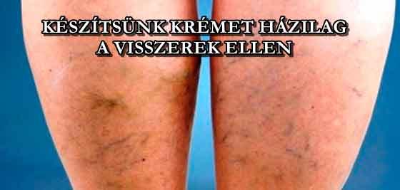Semmelweis Egészségügyi Kft., Hogyan kezeli a visszér műtét nélkül