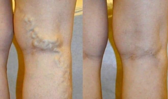 visszér és visszér műtét kompressziós nadrágok visszeres nőknek