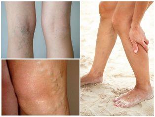 visszér népi receptek kezelésére krémek a lábak varikózisának megelőzésére